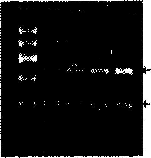 图1各组胎盘组织HSP90 mRNA表达