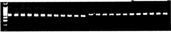 图1 G3PDH基因RT-PCR产物电泳吲