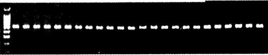 图2 5_H'l'RIAmRNA基因R'l'_PCR分析RT-PCR产物电泳图