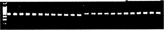 图3 C3PDH基因RT-PCR产物电泳图