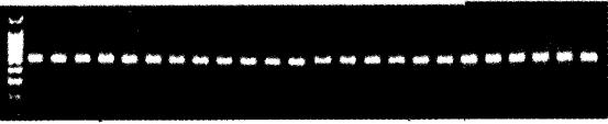 图4 5-HTRIAmRNA基因RT-PCR分析RT-PCR产物电泳图